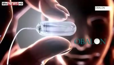 ... Obesity Gastric Balloon Technology Launched ...